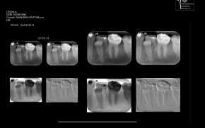 rx intra-periapical